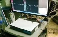 Monitoreo Neurofisiológico intraoperatorio reducirá notoriamente las secuelas en cirugías cerebrales y de columna