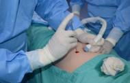 Realizan primera Cirugía Fetal Intrauterina en clínicas privadas de la región